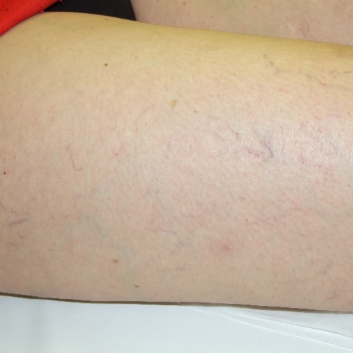 Thread Vein Treatments