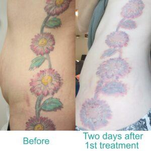 Tattoo Removal B&A